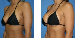 breast-augmentation-boston1